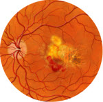 Macular Degeneration? It's Curable